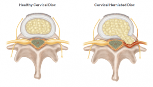 Figure 4: (L) Normal Cervical Disk vs (R) Herniated Disk